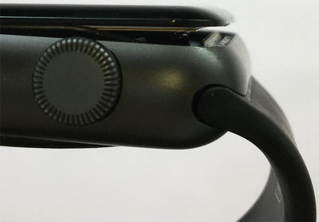 Apple Watch Swollen
